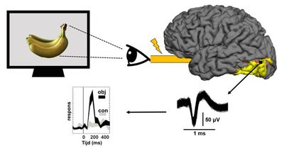 It is the first time that scientists have succeeded to study the visual cortex i
